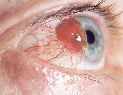 Как определить опухоль глаза: симптомы патологии и причины ее появления