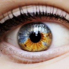 Проявления гетерохромии может иметь совершенно разнообразные формы и цвета