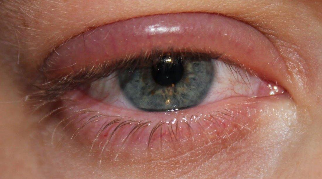Хроническая аллергия глаз