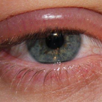 Основные проявления аллергии – покраснение конъюнктивы и слезотечение