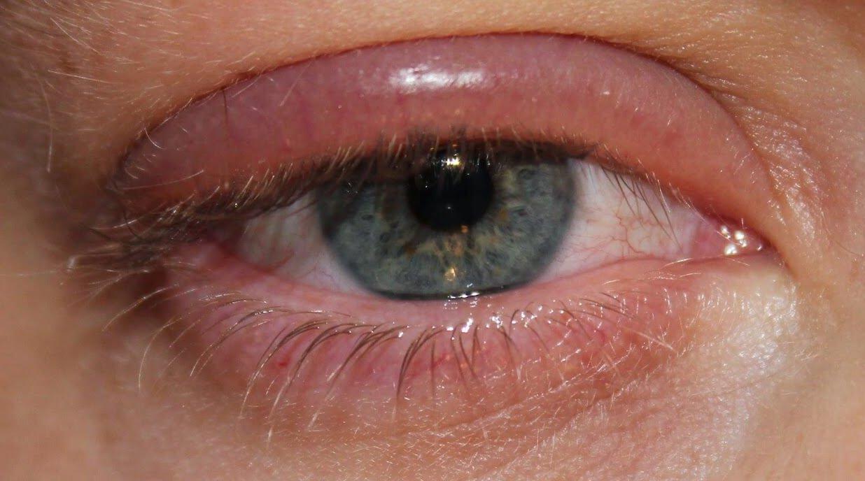 Что такое аллергия глаз: симптомы, причины и способы лечения