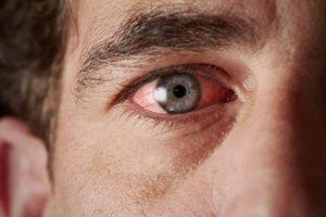 Что делать, если в глаза попала сварка, первая помощь, медикаментозная терапия, народные рецепты