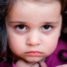 Что делать, если появились круги под глазами у ребёнка, причины и методы лечения