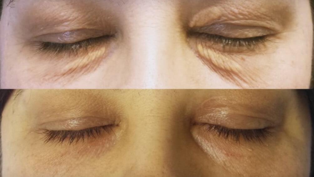 До и после лечения ксантелазм