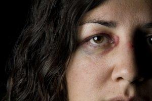 Женщина с синяком под глазом