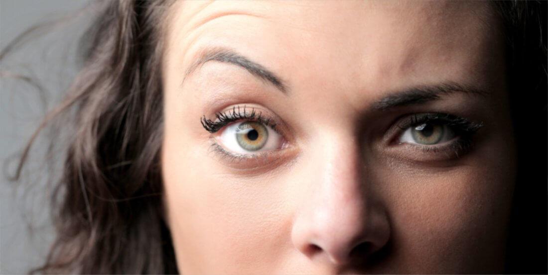 почему на фото один глаз больше другого них борются лучшие