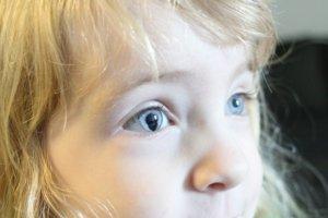 Девочка с колобомой глаза