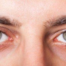 Как и чем можно максимально быстро убрать красноту глаз