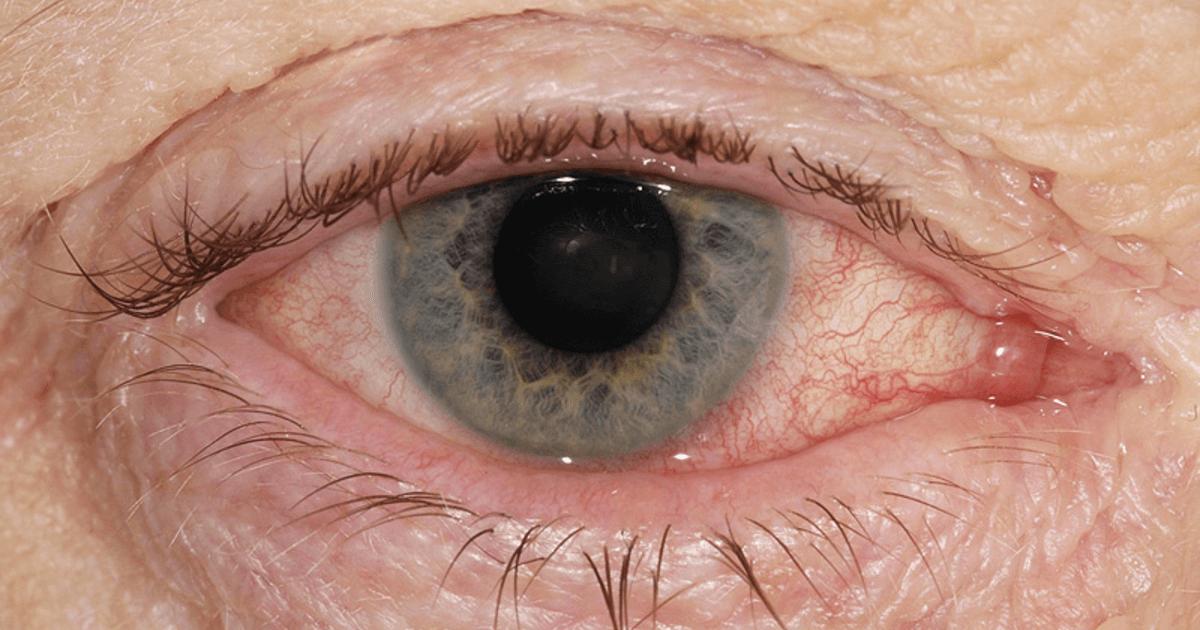 Причины возникновения и методы лечения хронического блефарита