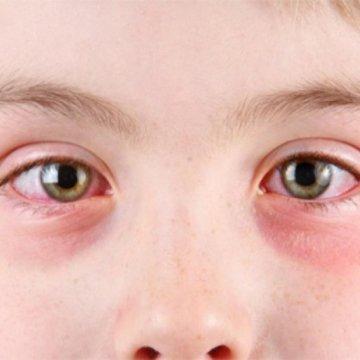 Причины появления и методы лечения аллергического конъюнктивита у детей