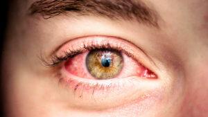Капилляры глаза