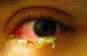 Глаза с конъюнктивитом