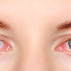 Почему глаза по утрам красные и что с этим делать