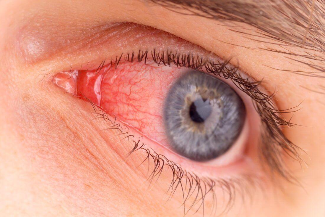 Что делать, если лопнул капилляр в глазу: как избежать повреждений и последствий, препараты для лечения и профилактики