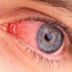 Почему лопаются капилляры в глазах и как избавиться от этой проблемы
