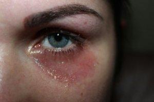 Раздражение под глазами