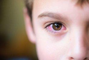 Лопнули капилляры глаза у ребенка