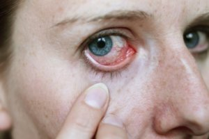 Лопнувшие сосуды глаза