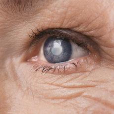 Особенности лечения катаракты у пожилых людей, эффективные методики