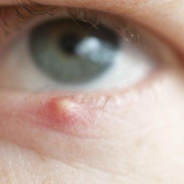 Самые эффективные глазные мази от ячменя и правила их применения