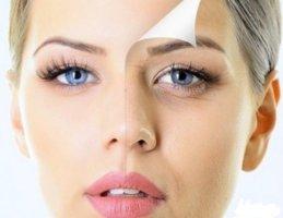 Самое эффективное средство от морщин вокруг глаз в домашних условиях thumbnail