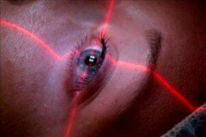 Лазерное лечение гетерохромии