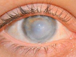 Осложнения контузии глаза