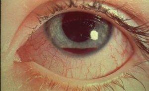 Чем опасна контузия глаза