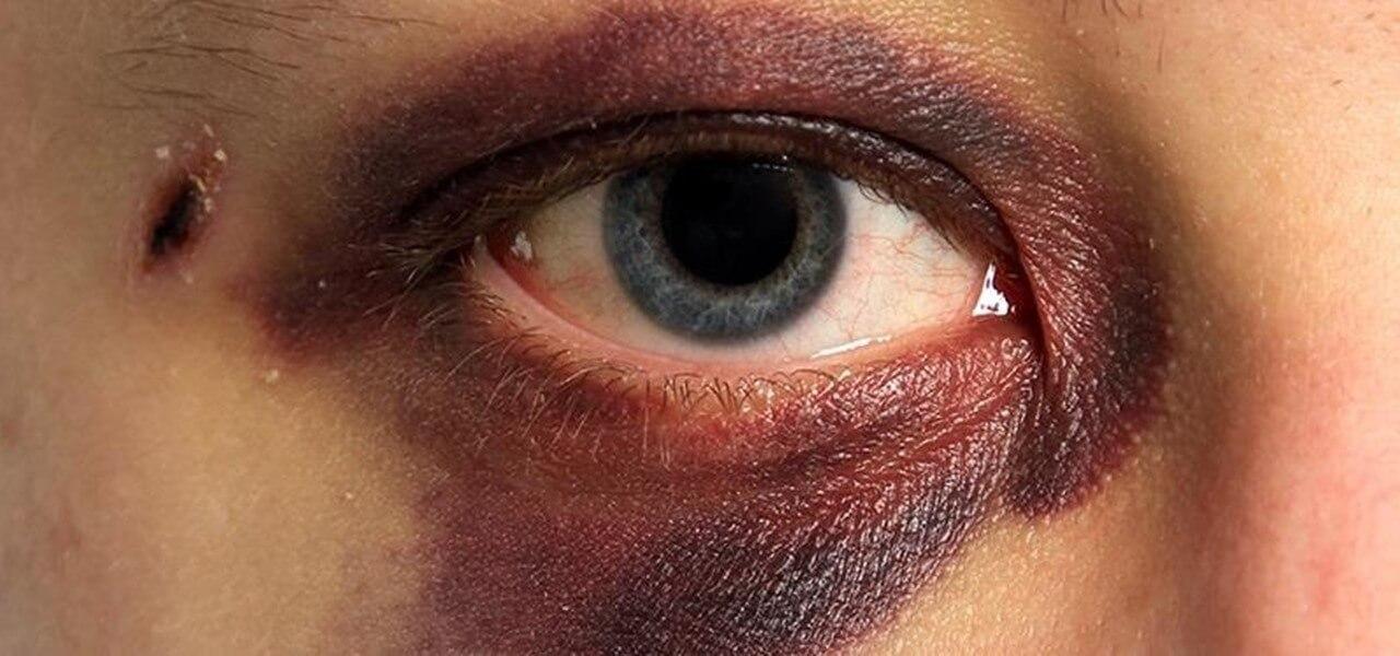 Последствия контузии глаза и методики их лечения