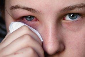 Аллергия на линзы
