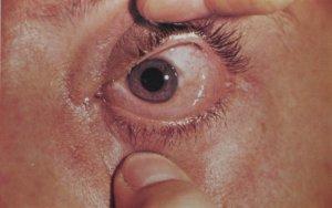 Прогноз лечения хемоза