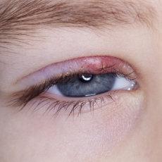 Как начинается ячмень: первые тревожные признаки заболевания, методы лечения и профилактики