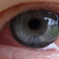 Чем опасен хемоз глаза и как избежать негативных последствий