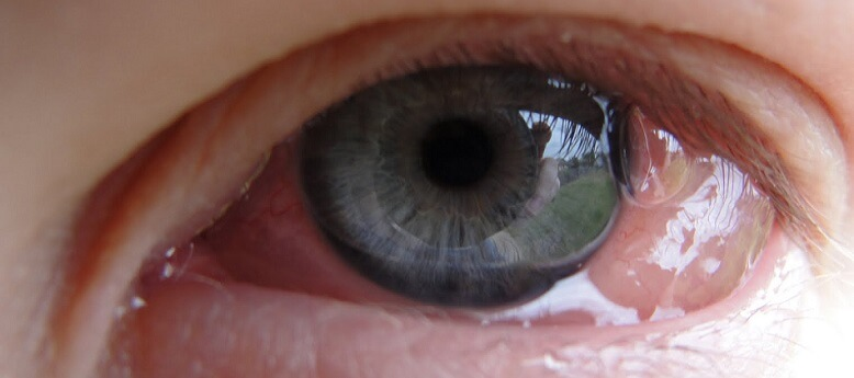 Хемоз глаза