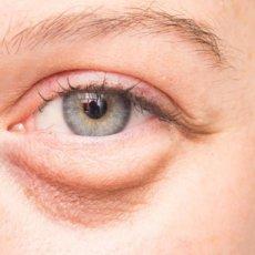 Причины появления отёка глаза после удара и методы его лечения