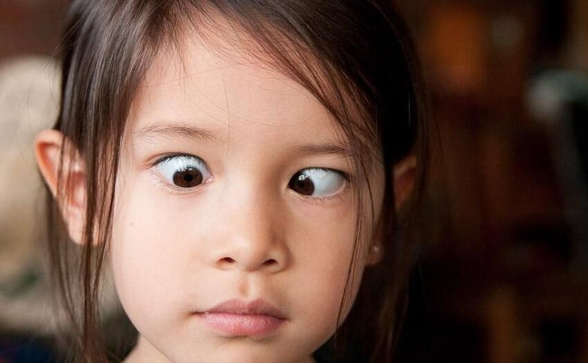 У ребенка косит один глаз к носу: советы родителям, методики лечения и прогноз заболевания