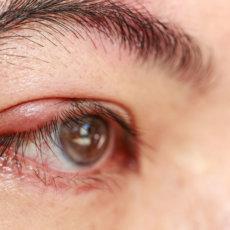 Простая и эффективная профилактика от ячменя на глазу для взрослых и детей