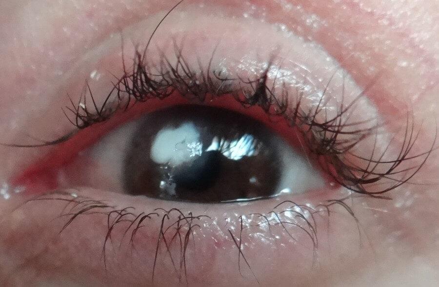 Белое пятно на глазу